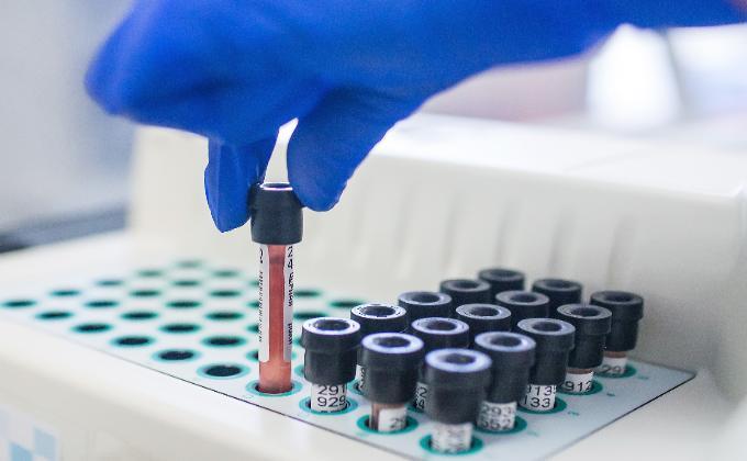 Гепатитом C болен каждый 21-ый новосибирец
