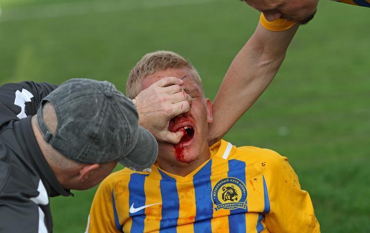 Разбитое лицо футболиста из Владивостока стало предметом расследования
