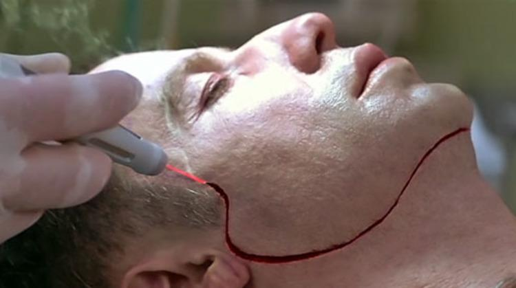 Приморцу сломало лицо на работе