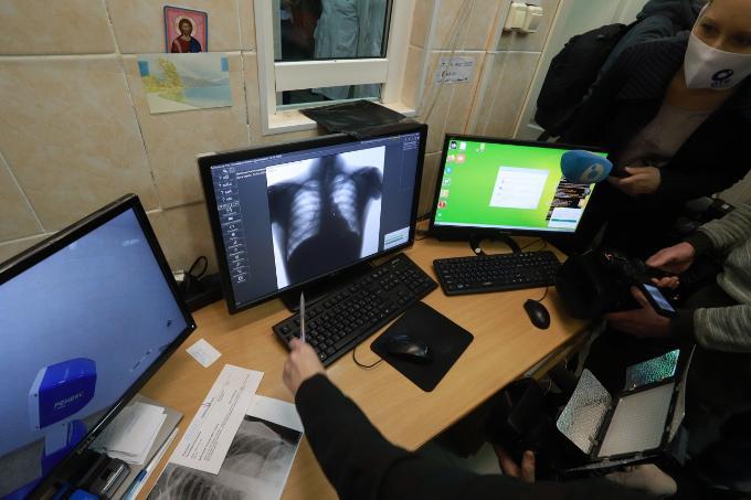 Переболевших COVID-19 новосибирцев призвали пройти диспансеризацию