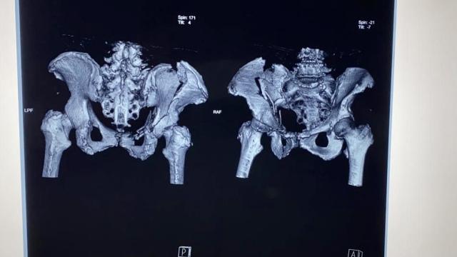 Винты и пластины: новосибирские врачи поставили на ноги пенсионерку с травмой таза