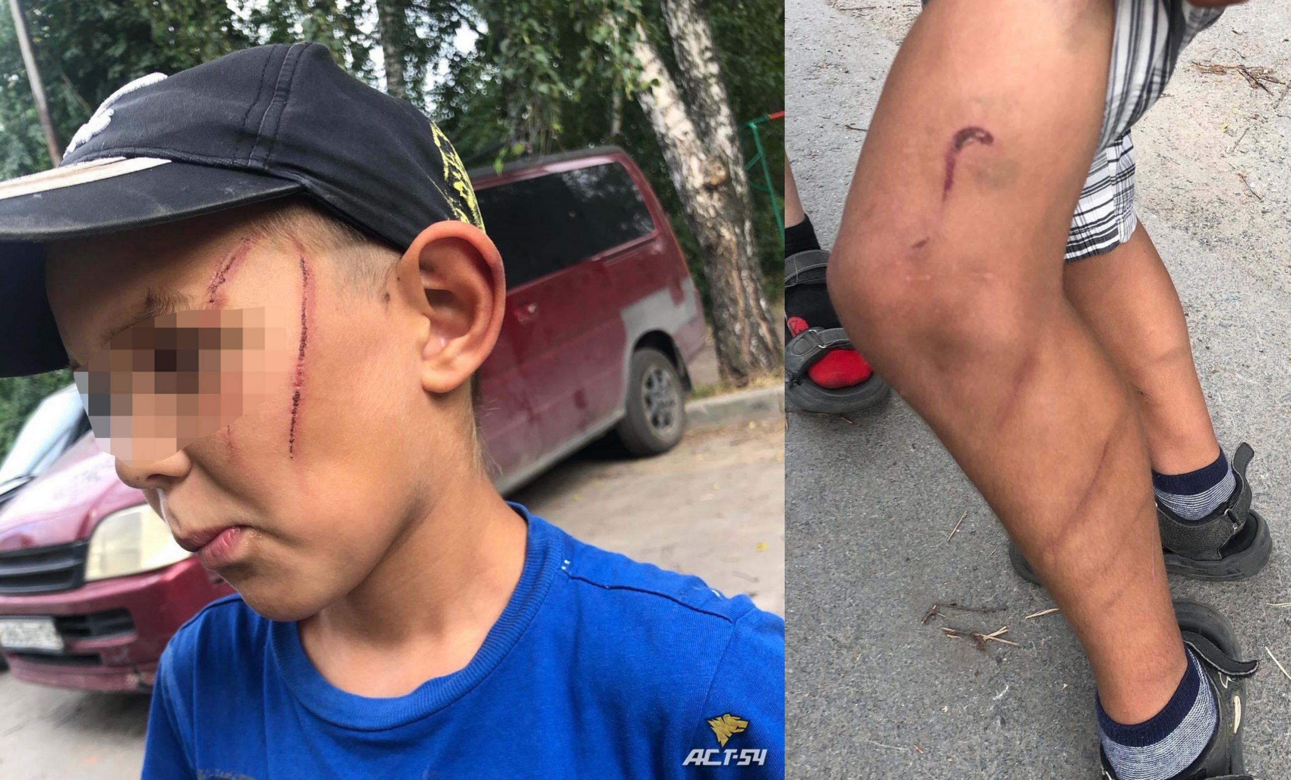 Новосибирец жестоко избил 7-летнего пасынка шнуром от чайника