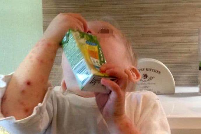 Вспышку вируса Коксаки опровергли врачи в Новосибирске