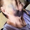 Приморец хочет наказать соседа, избившего его 70-летнюю бабушку
